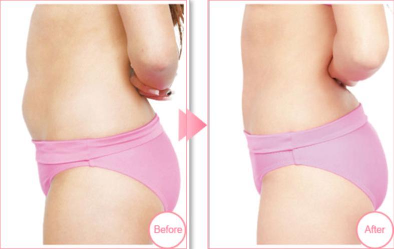 腹部吸脂案例:专属打造S型身材