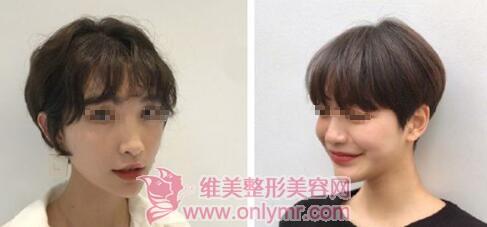短发造型脸小做才好看,把脸变小的方法有哪些呢