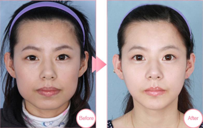 下颌角整形案例:终于摆脱大脸了