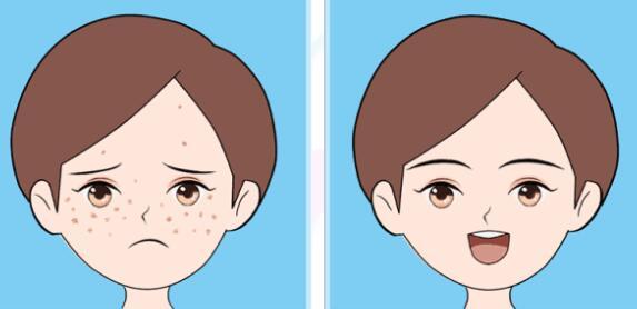 脸上长斑要怎么去除比较好