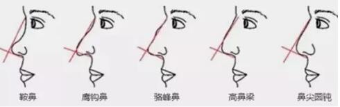 想知道是不是侧颜杀,就来测一测你离隆鼻标准还差多远