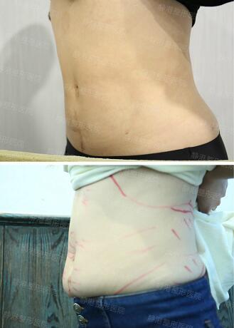 腹部吸脂案例:我由肥肚腩变小蛮腰的感受