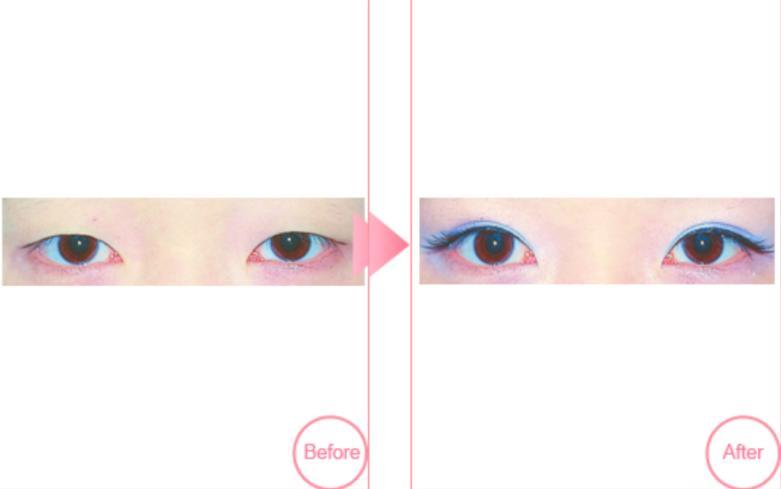 割双眼皮手术案例:给你动灵大眼