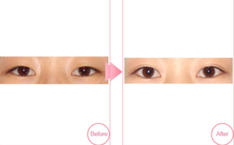 埋线双眼皮手术案例:天呀!眼睛真的变大了