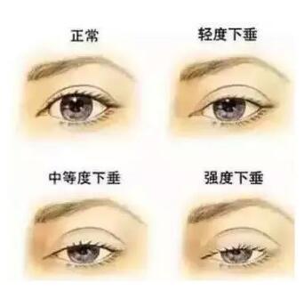 为什么这样的双眼皮会显老