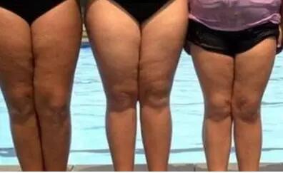 微胖的女孩这个部位瘦5斤将会非常漂亮