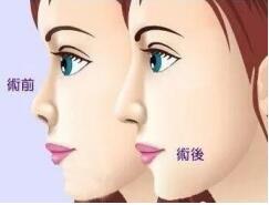 隆鼻后会让鼻子变好,那隆鼻手术是怎样的