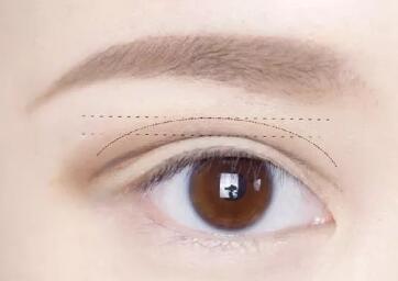 揭发双眼皮手术不为人知的套路