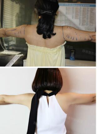 手臂吸脂案例:分享我真实的蝶变过程