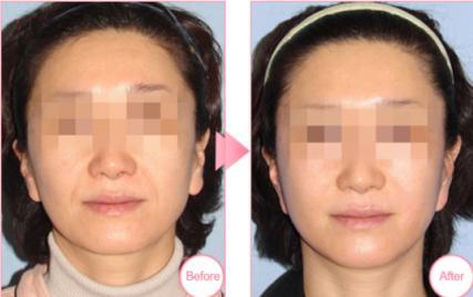 埋线面部提升案例:帮你扫除面部皱纹
