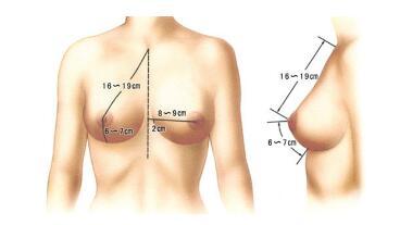 秋季丰胸正当时,南宁假体隆胸让胸部更丰满