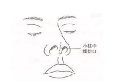 关于隆鼻手术切口隐藏大揭秘