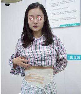 腰腹吸脂术后术后4天  解决你们腰腹赘肉