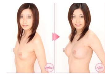 假体隆胸案例:胸部确实是变得大了许多