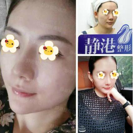 隆鼻案例:一个做隆鼻手术女孩的感想