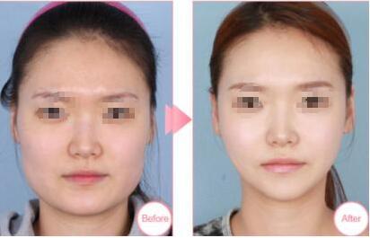 注射肉毒素�l脸案例:终于拥有锥子脸了