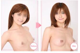 假体隆胸案例:胸部不再平了