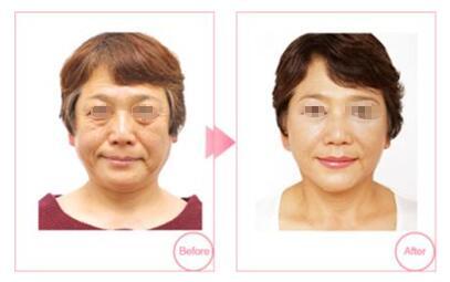 注射自体脂肪去皱案例:让你的肌肤更加紧致年经