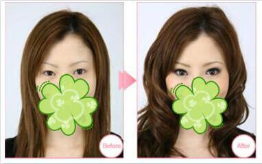 种植睫毛案例:浓密弯俏就是那么简单