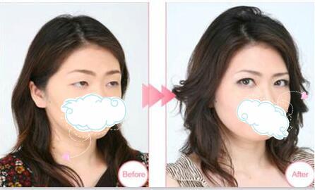 种植睫毛案例:再也不用贴假睫毛了