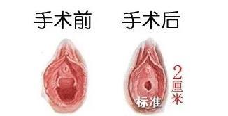 处女膜修复术让你如同真的处女