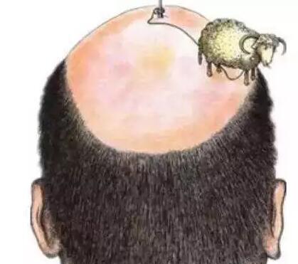 毛发移植其实很安全、有效