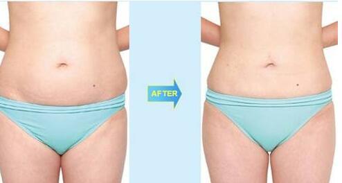 一台完整腰腹部吸脂手术要经历这些步骤