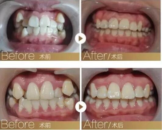 矫正牙齿需要先拔牙