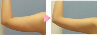 手臂吸脂案例:手臂都瘦了很多