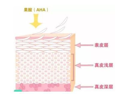 简单科普果酸换肤的5个局限体现