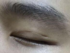 双眼皮术后切口凹陷怎么办