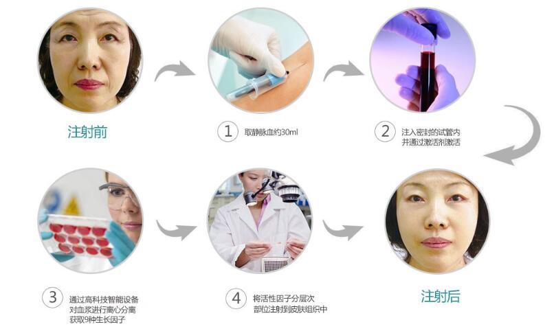 CLS活细胞抗衰老 延缓衰老新疗法