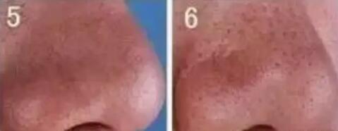 毛孔粗大不同等级需要对应收毛孔方法