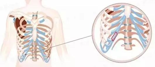 【鼻综合整形科普】肋软骨在鼻综合整形的作用
