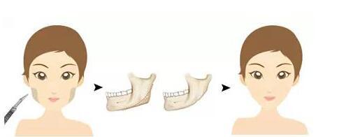 下颌角整形改变脸型让您相貌出众迷人