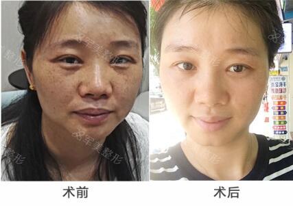 激光祛斑案例:脸上的斑点真的没啦