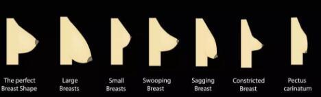 被骗了很久的3中丰胸方法被揭穿 不如假体丰胸实在