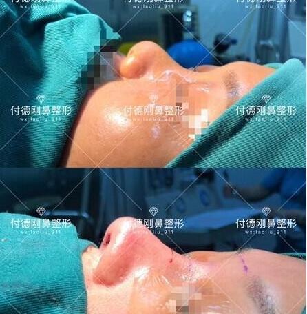 海南华美整形的鼻综合整形和所推的鼻整形医生