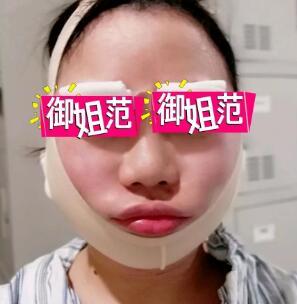 面部吸脂不会致使面部松弛 超实用吸脂案例告诉你答案