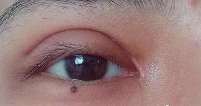 开眼角疤痕一个月内比较明显及恢复护理