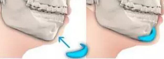 如何拥有完美的下巴?几种方法隆下巴很好