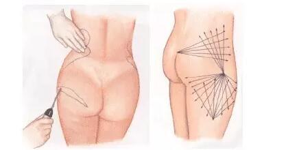 臀部吸脂的注意事项及吸脂医生攻略