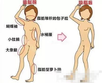 吸脂瘦身效果很好,可是有哪些副作用