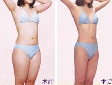 腹部吸脂案例:变瘦了,身材真好看