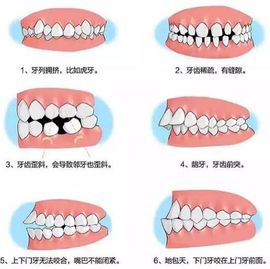 牙齿矫正时间每个人不一样跟3点因素有关