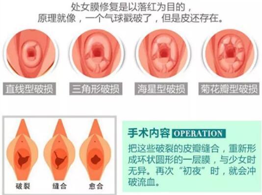 处女膜修复手术知识得了解
