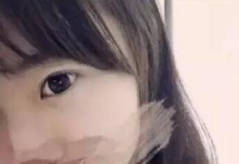 开扇型双眼皮的特点深受求美者青睐