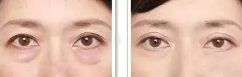 科普彻底祛除眼袋方法