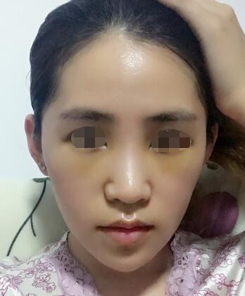 【整形口碑】北京京民医院王志坚的自体脂肪移植