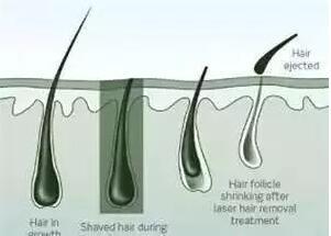 春季脱毛进行时,激光脱毛你了解一下